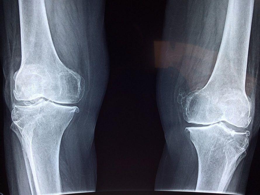 рентген коленных суставов